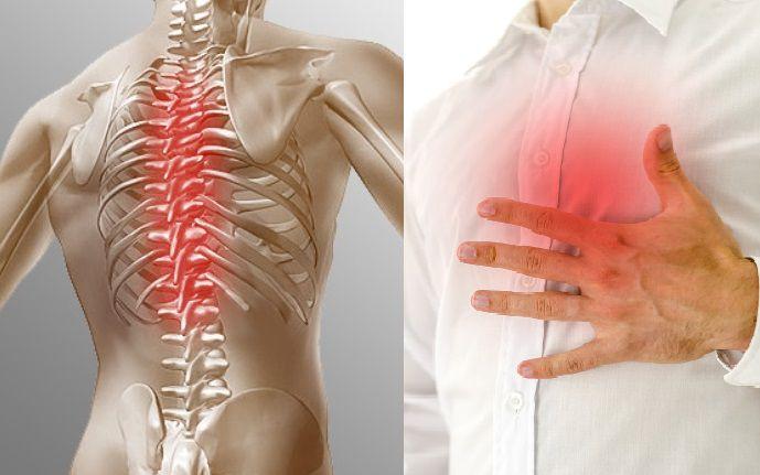 Шрудной остеохондроз и боль в груди