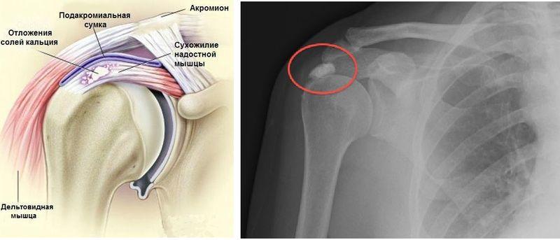 Кальцификаты в сухожилии надостной мышцы