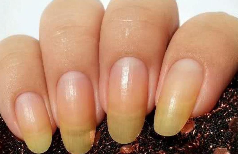 Гиперпигментация ногтей