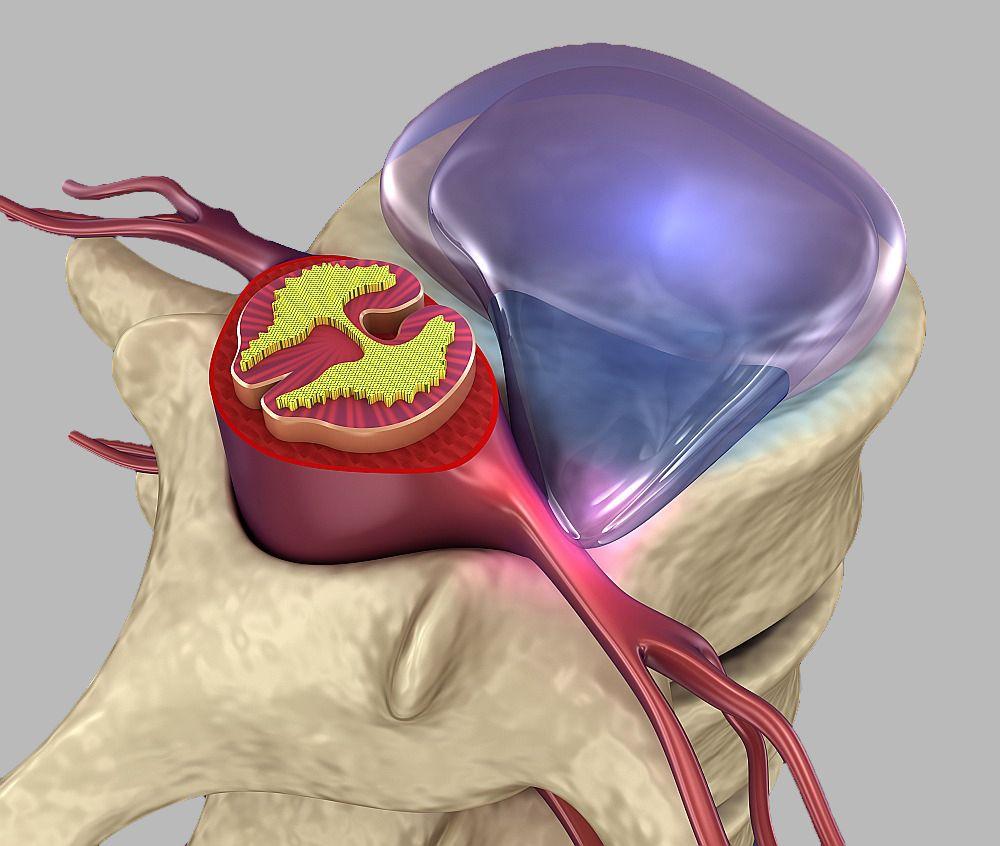 Ущемление спинномозгового корешка межпозвоночной грыжей