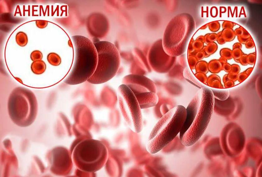 Количество эритроцитов при анемии и в норме