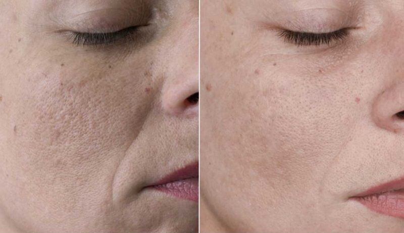 Омолаживающий эффект плазмолифтинга лица