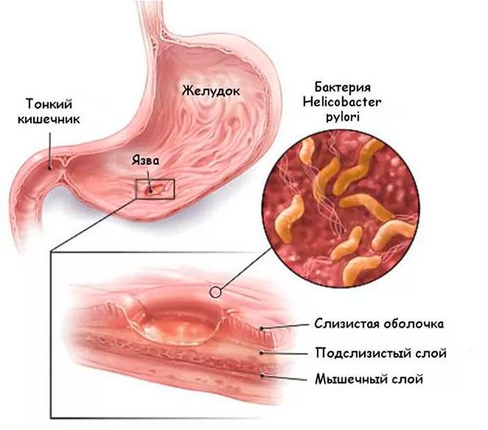 Язвенная болезнь желудка и Helicobacter pylori